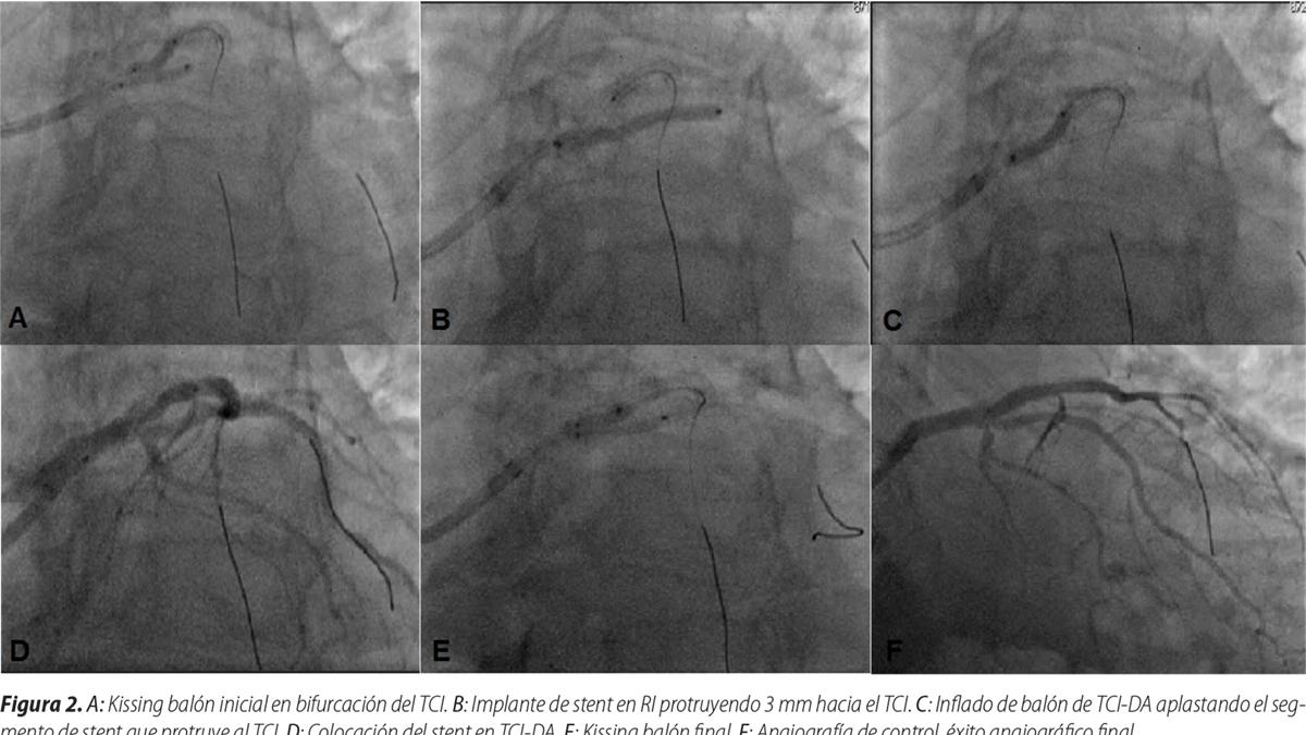 Angioplastia preventiva con técnica de 2 stents en el infarto agudo del miocardio