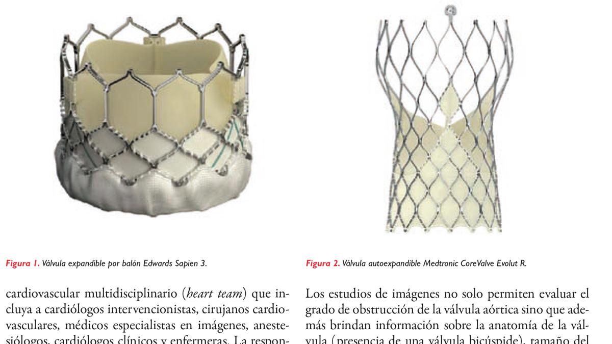 Actualización en implante percutáneo de válvula aórtica