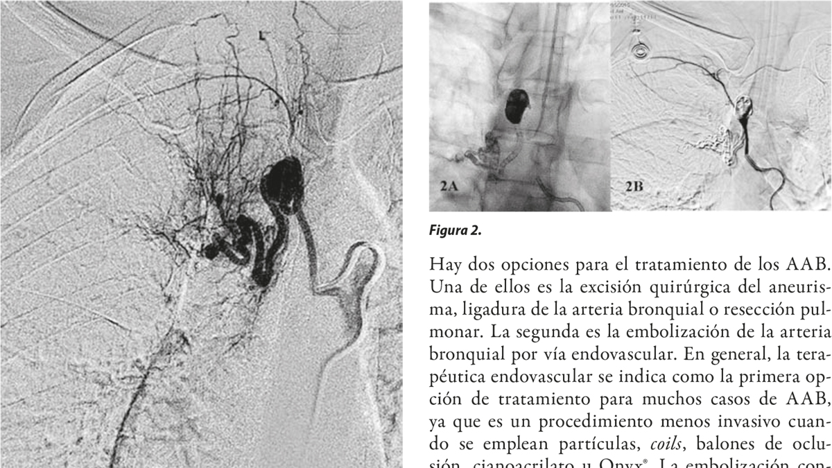 Tratamiento endovascular exitoso de un aneurisma de arteria bronquial sintomático