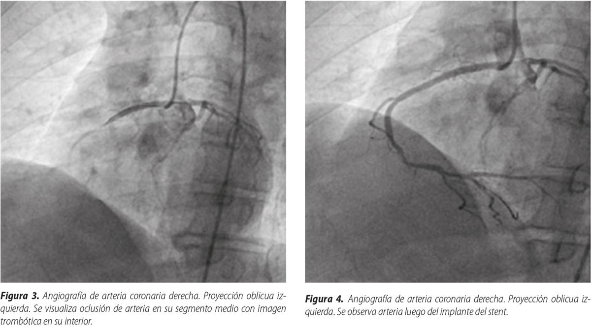 Angioplastia primaria en arteria coronaria derecha con nacimiento anómalo en el seno coronariano izquierdo