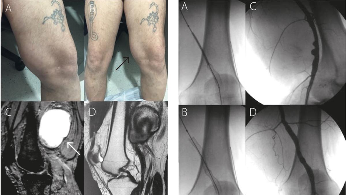 Manejo endovascular de un pseudoaneurisma gigante de la arteria femoral superficial