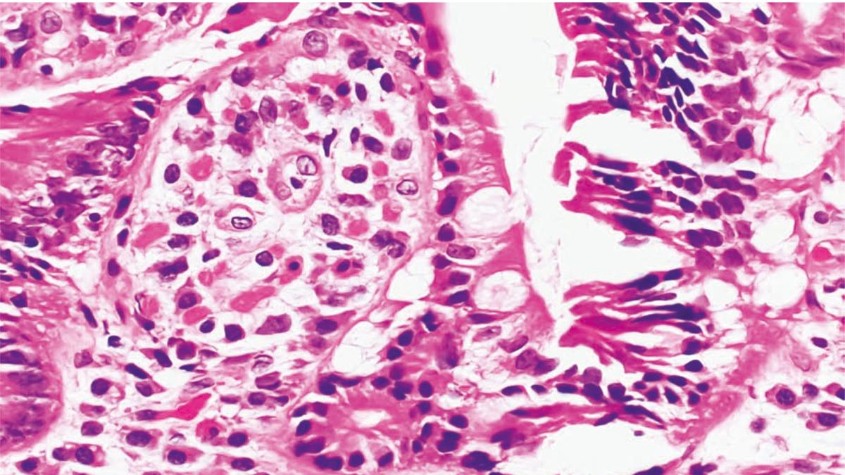 Mastocitosis, una causa extraña de dolor precordial y síncope