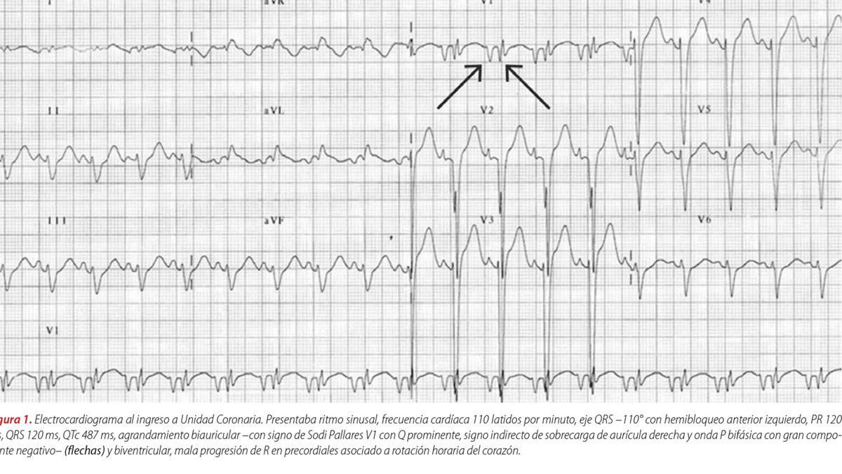 Distrofia muscular como causa de insuficiencia cardíaca