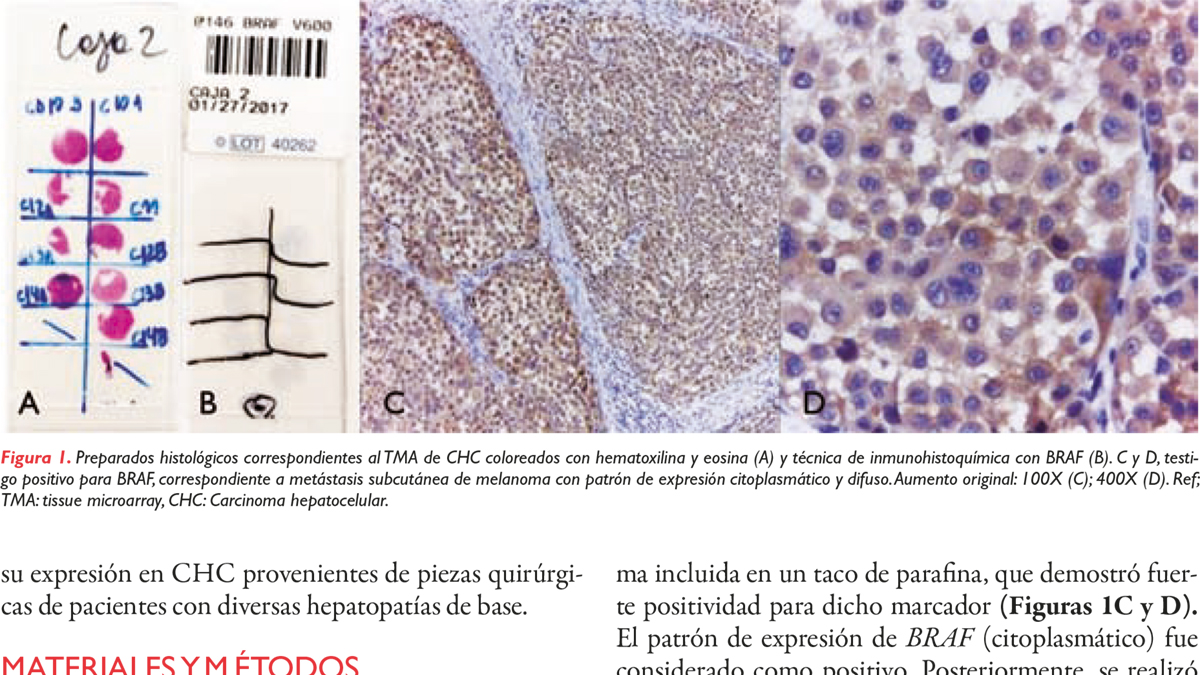 Estudio de la expresión de BRAF por inmunohistoquímica en carcinomas hepatocelulares