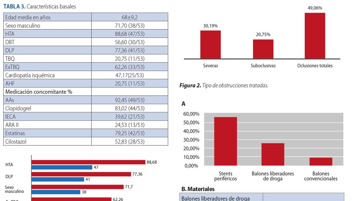 Angioplastia percutánea compleja en territorio femoropoplíteo: resultados a corto y mediano plazo