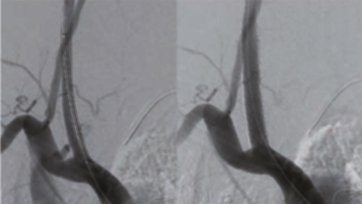 Tratamiento endovascular de injuria arterial iatrogénica