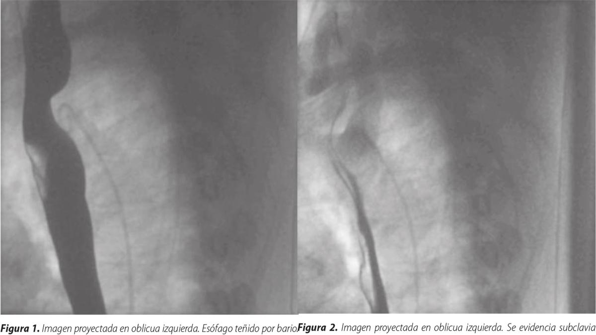 Arteria subclavia aberrante, diagnóstico angiográfico