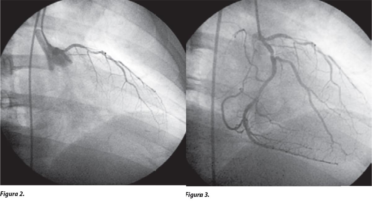 Arteria coronaria única