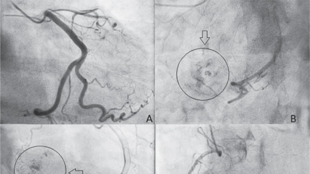 Neovascularización de mixoma auricular