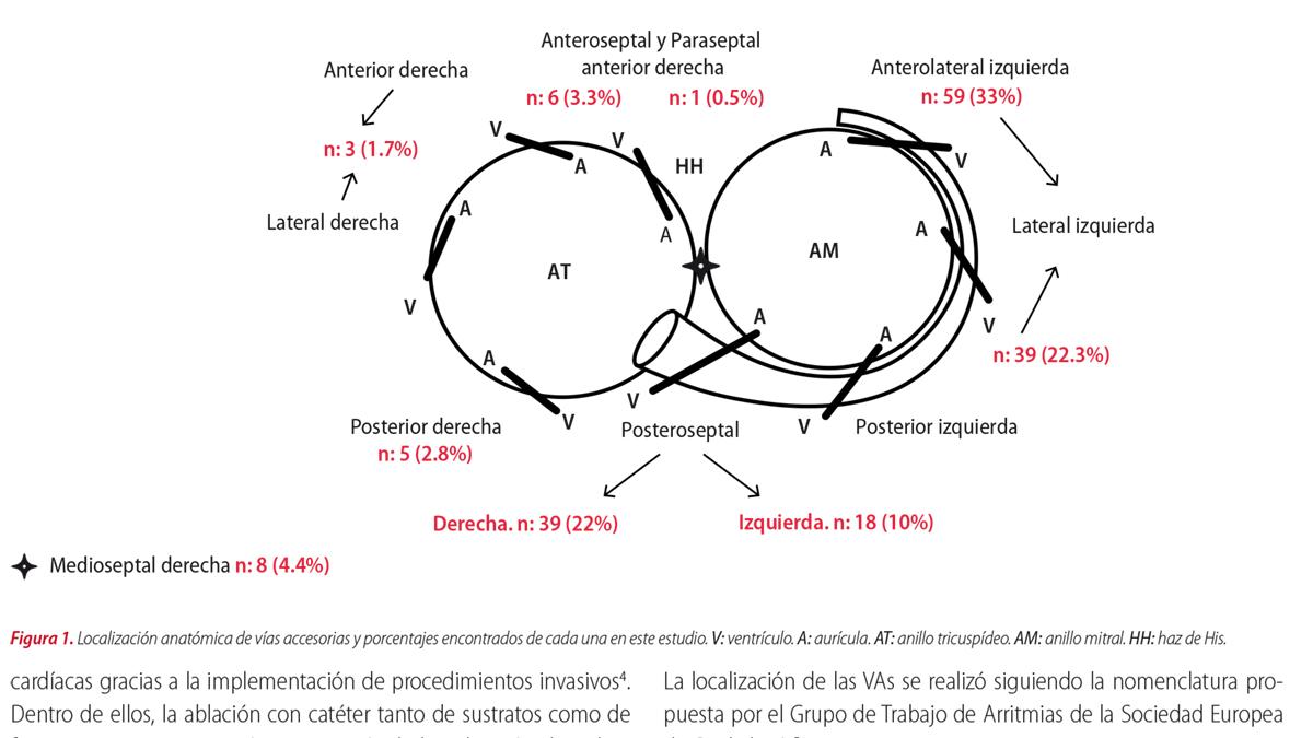 Eficacia y seguridad de la ablación por radiofrecuencia para el tratamiento de las arritmias en pacientes con vías anómalas