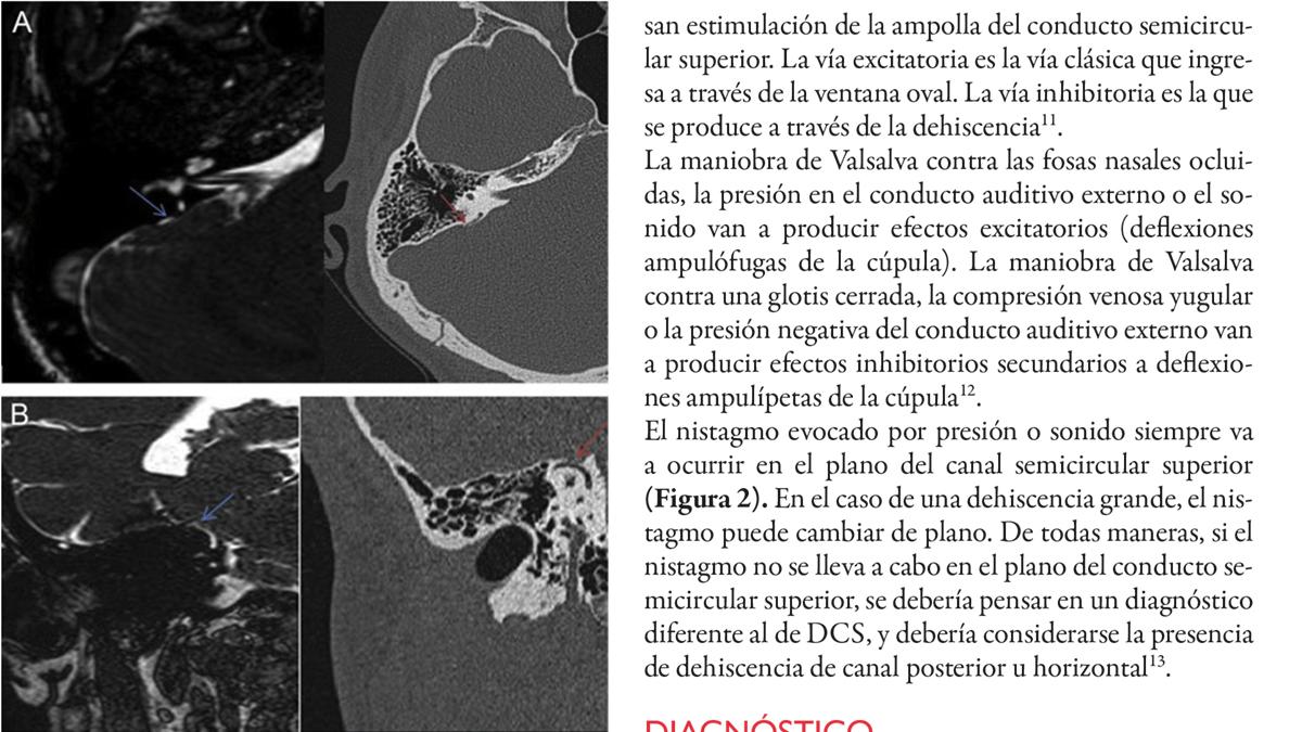 Dehiscencia de conducto semicircular superior