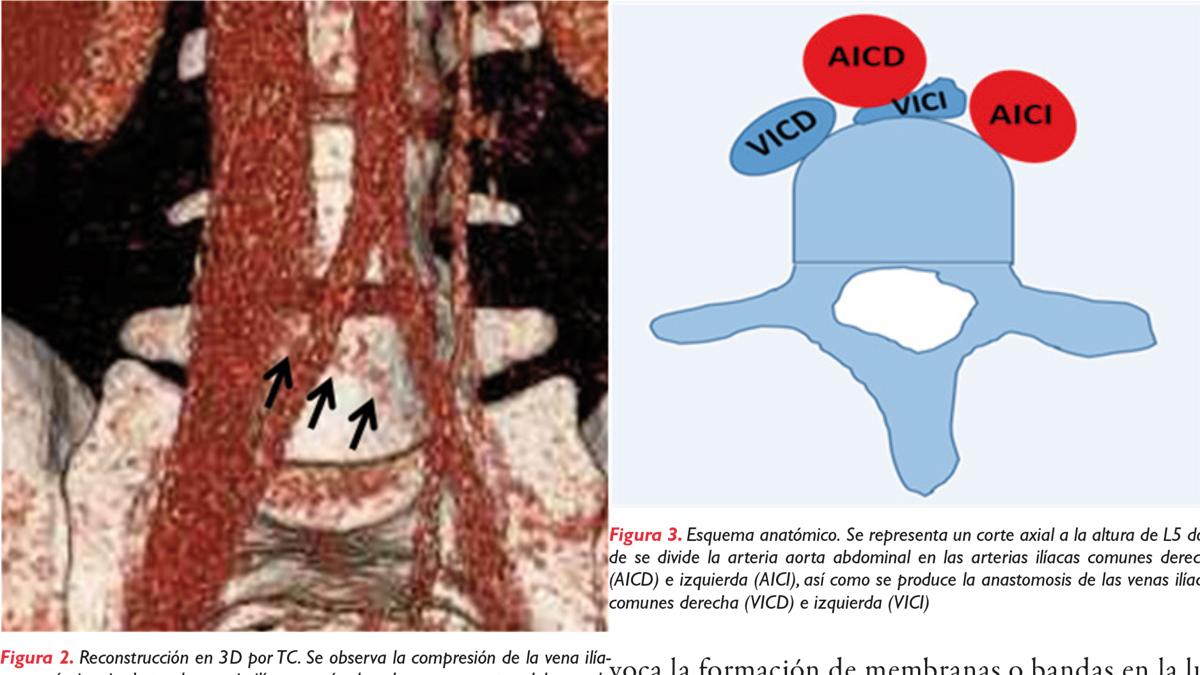 Síndrome de May-Thurner: síndrome de compresión de la vena ilíaca