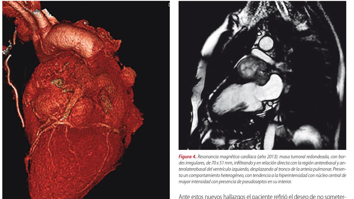 Shock cardiogénico secundario a síndrome coronario agudo por tumor cardíaco