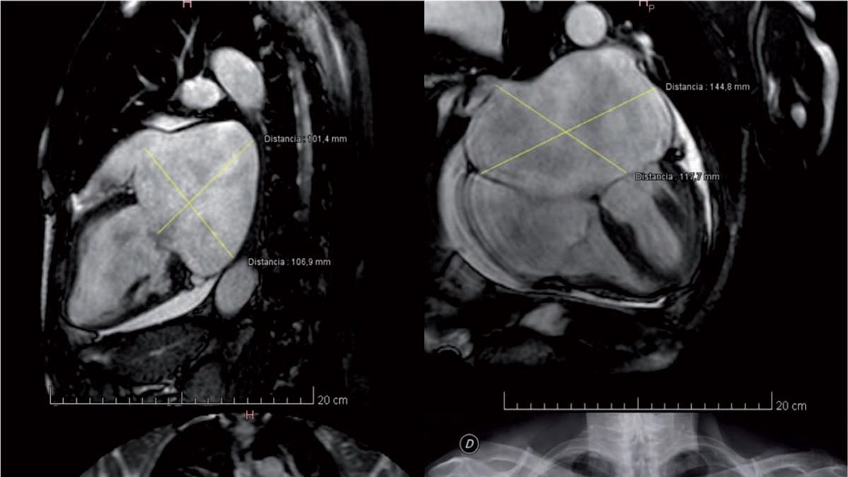 Aurícula izquierda gigante. Caso clínico y revisión bibliográfica