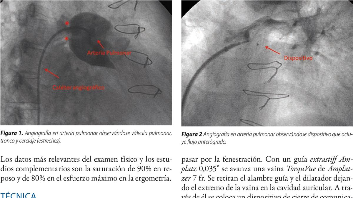 Cierre de fenestración y de flujo anterógrado por arteria pulmonar residual en un paciente con bypass total de ventrículo derecho