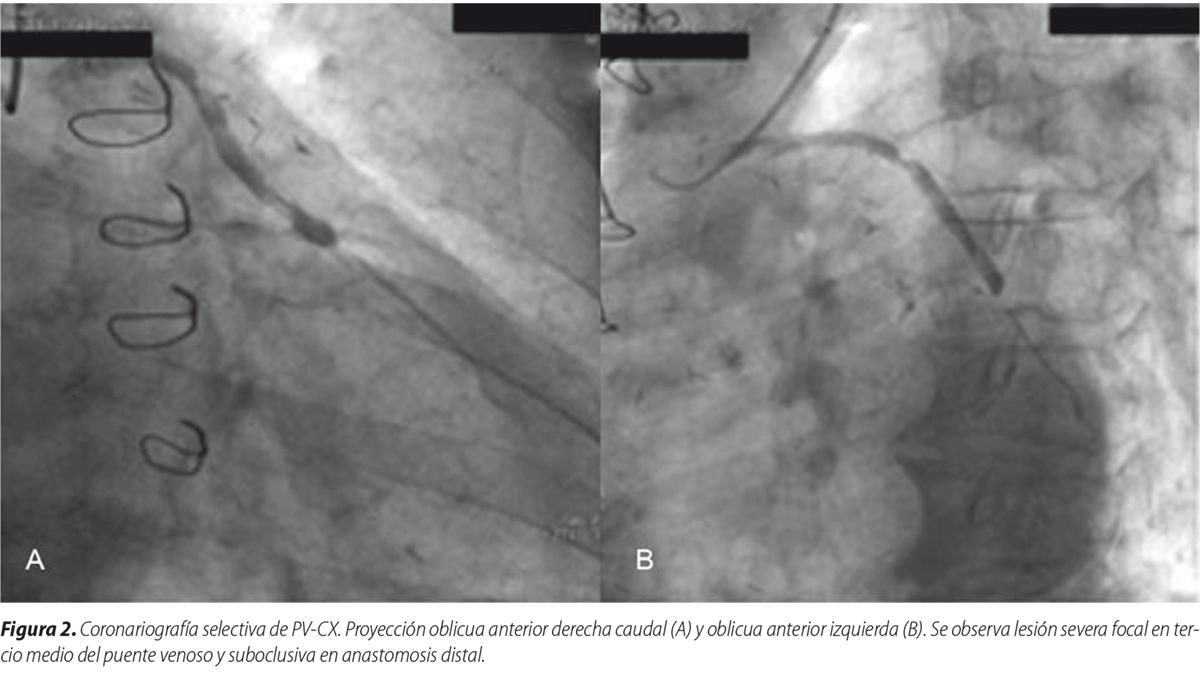 Angioplastia a puente venoso por vía radial izquierda distal. Nueva alternativa de acceso arterial