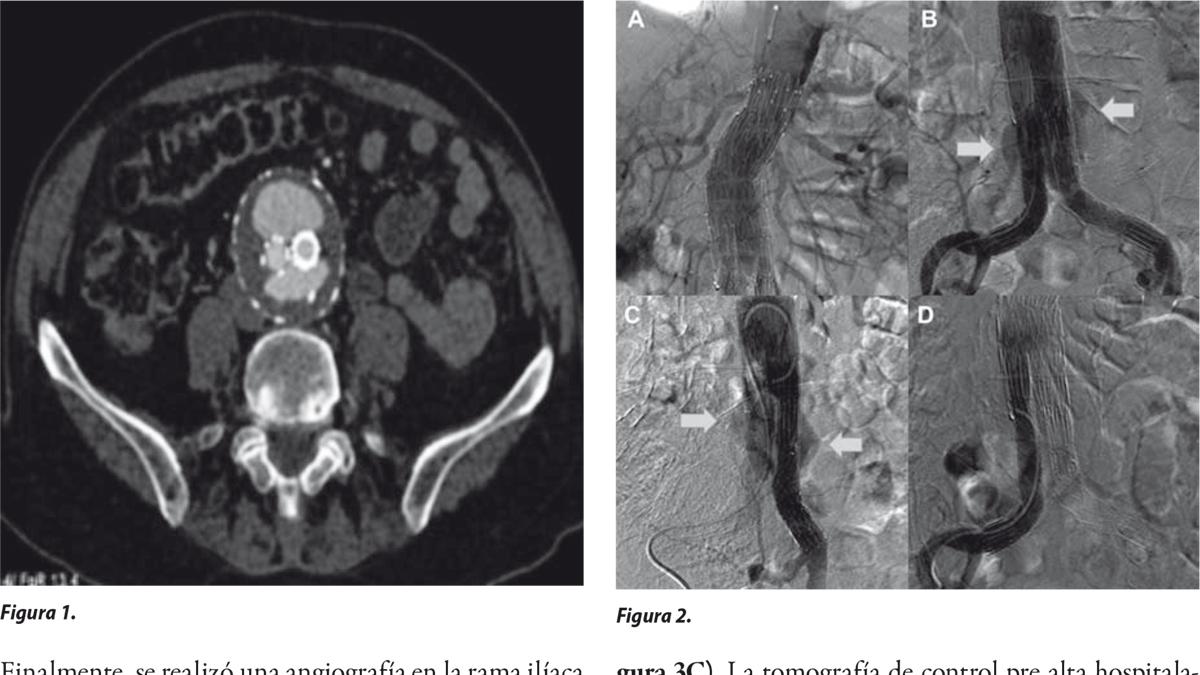 Diagnóstico de endofuga tipo IIIb y su tratamiento endovascular