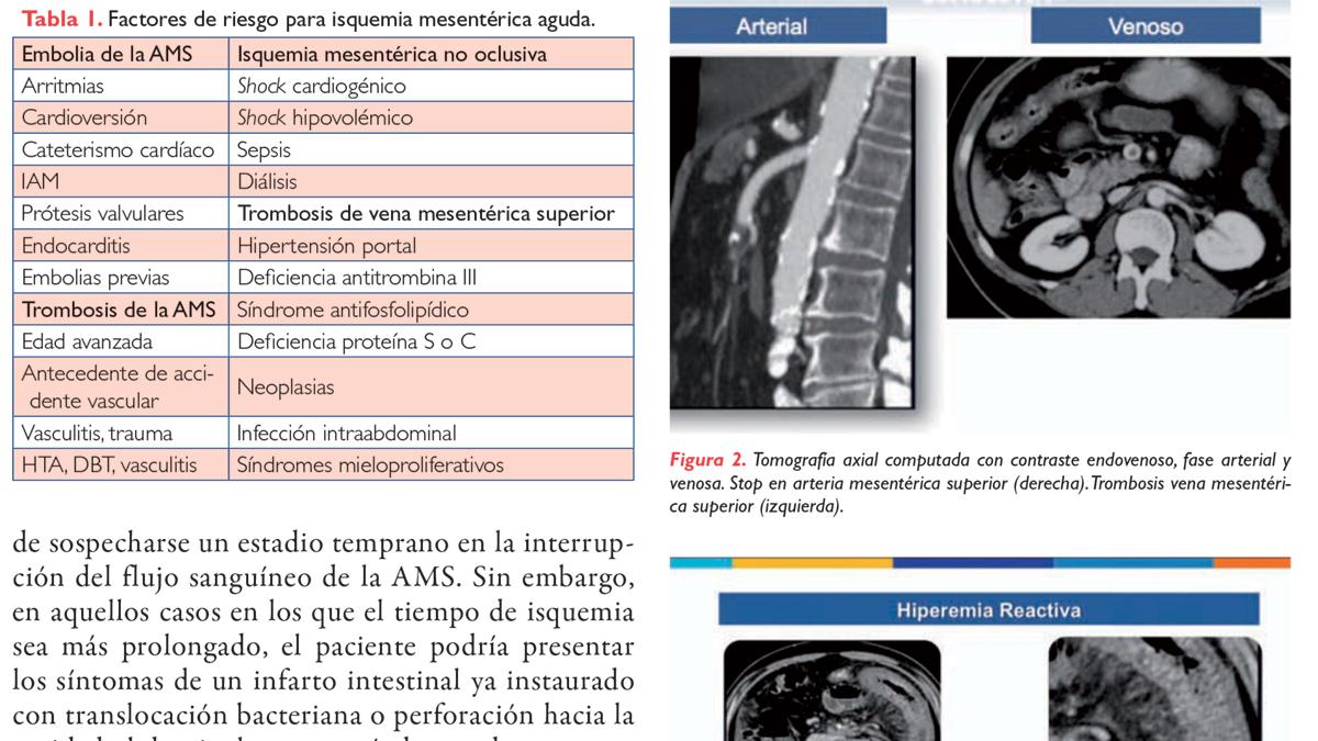 Guía de práctica clínica en isquemia mesentérica
