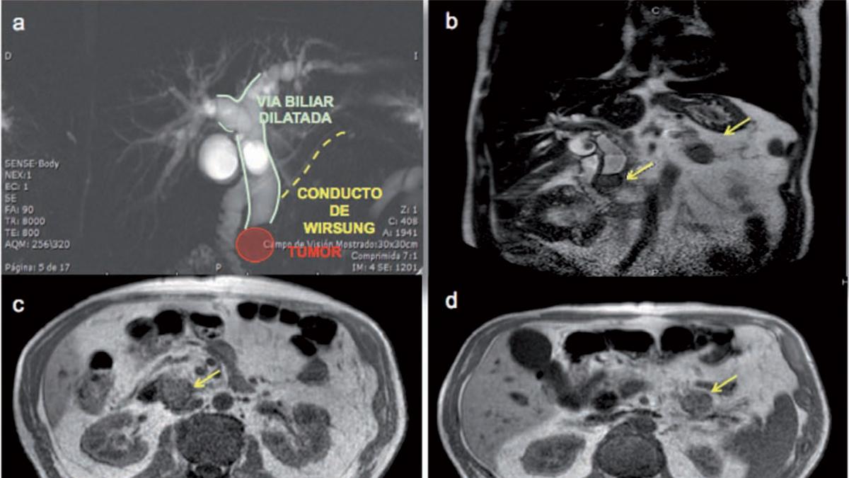 Resección con preservación de parénquima  en tumor sincrónico de páncreas