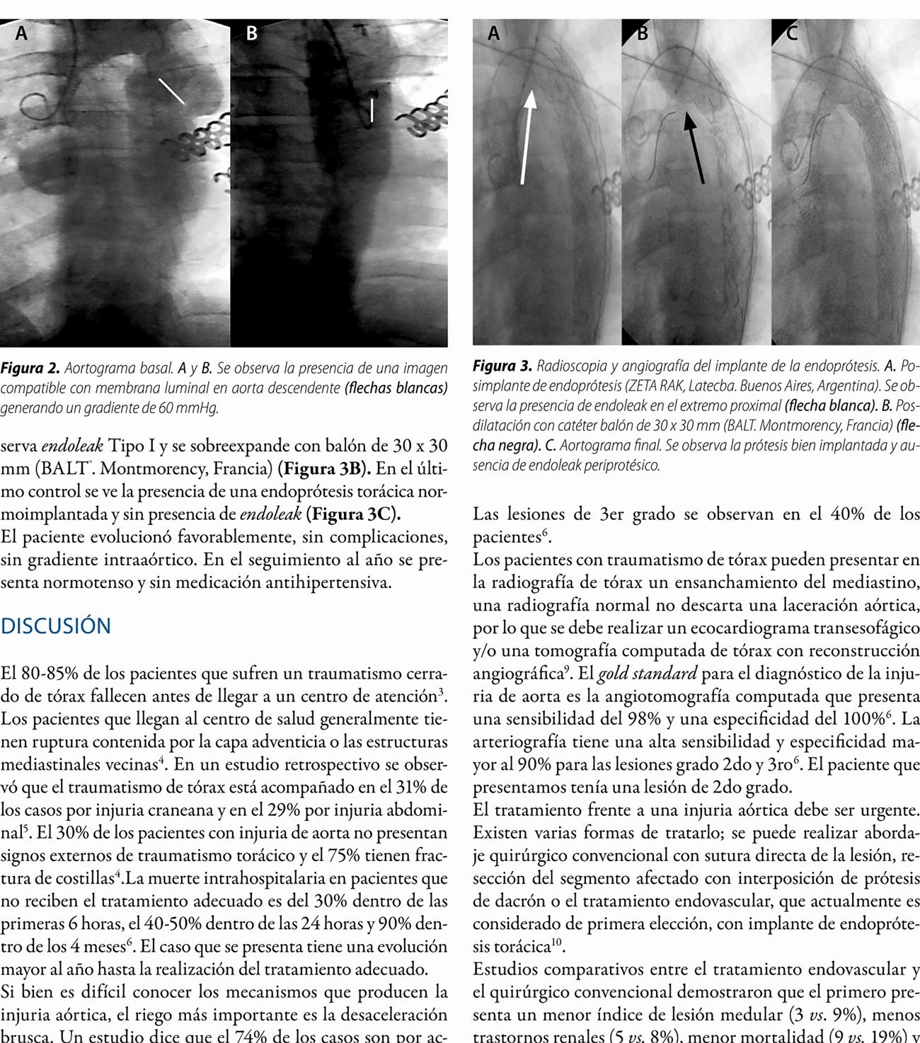 Presentación atípica de injuria aórtica por traumatismo cerrado de tórax