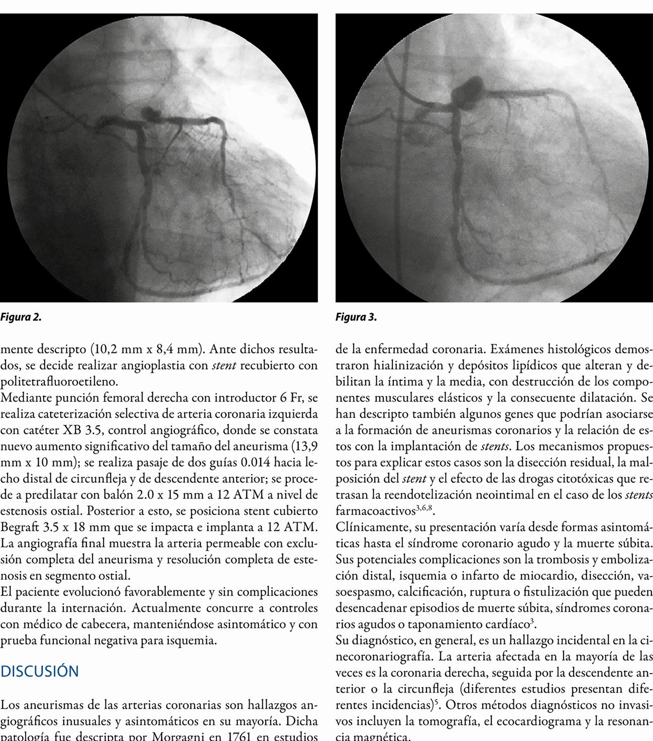 Tratamiento endovascular de aneurisma coronario  de rápido crecimiento