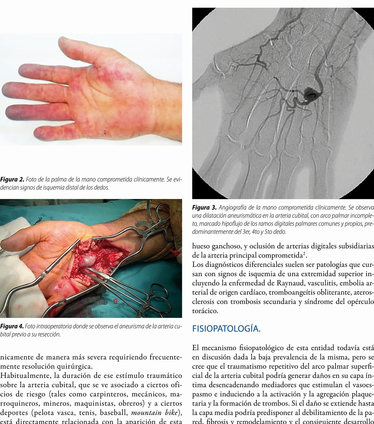Síndrome de martillo hipotenar: reporte de un caso