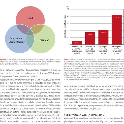 Fragilidad y cardiopatía isquémica