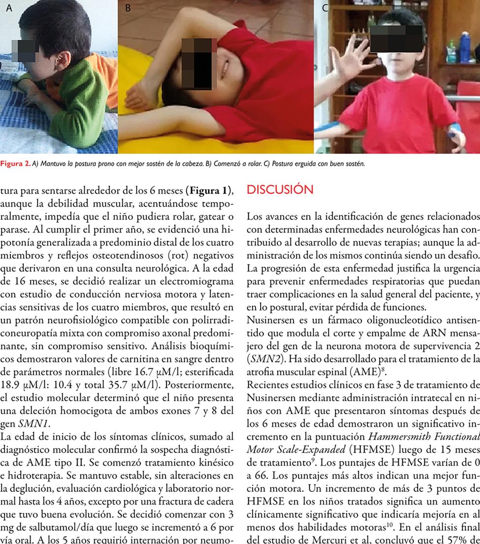 Atrofia muscular espinal en tratamiento: reporte de un caso