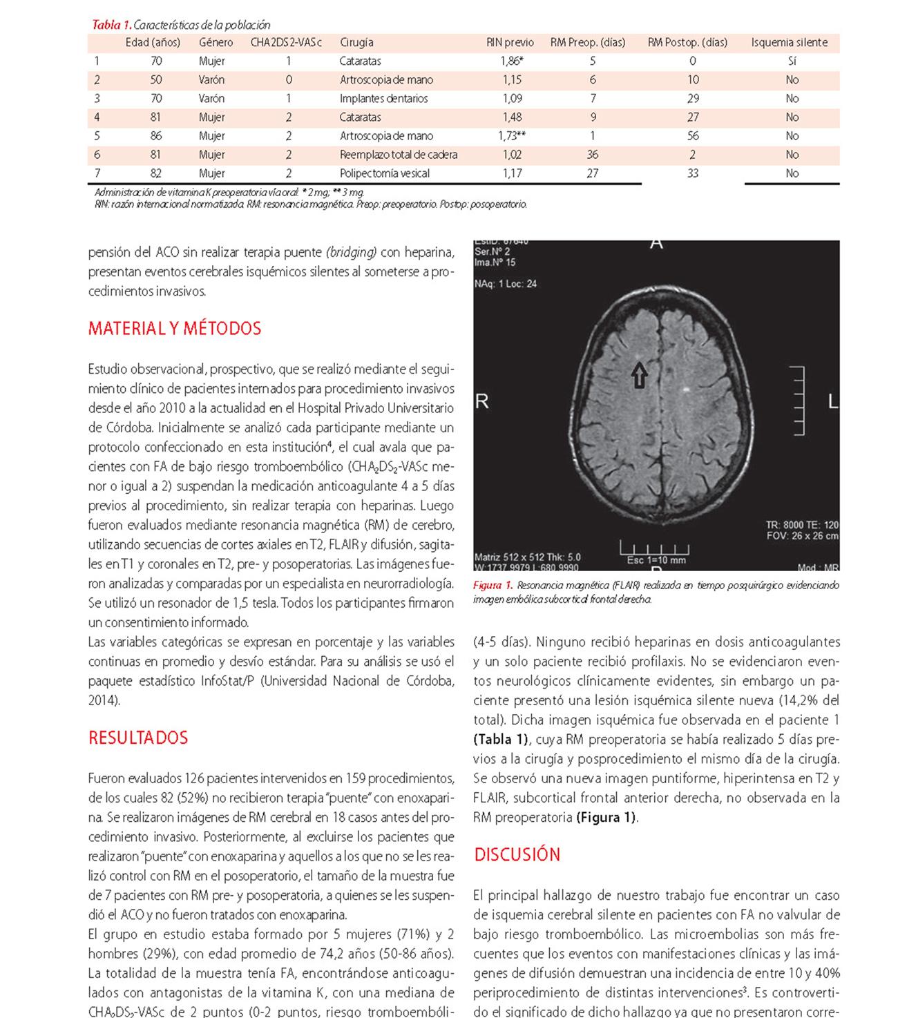 Isquemia cerebral silente perioperatoria en pacientes con fibrilación auricular