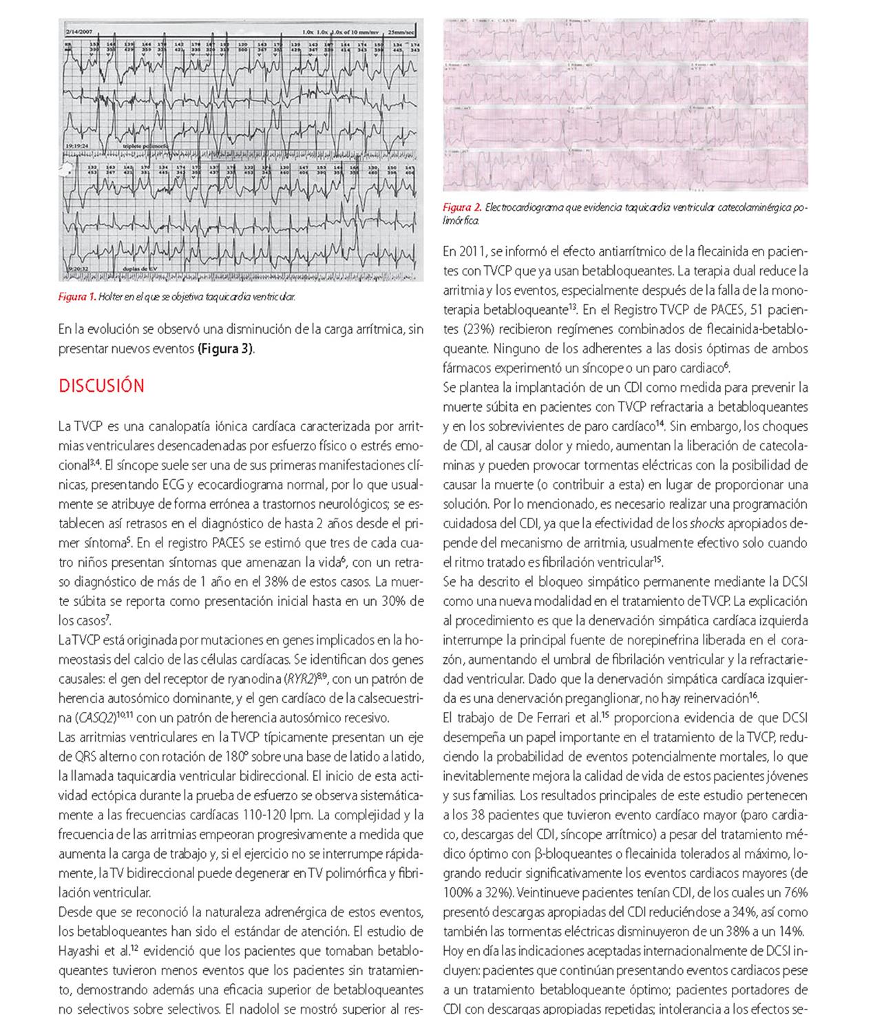 Denervación simpática como tratamiento alternativo en adolescente con taquicardia ventricular catecolaminérgica polimórfica
