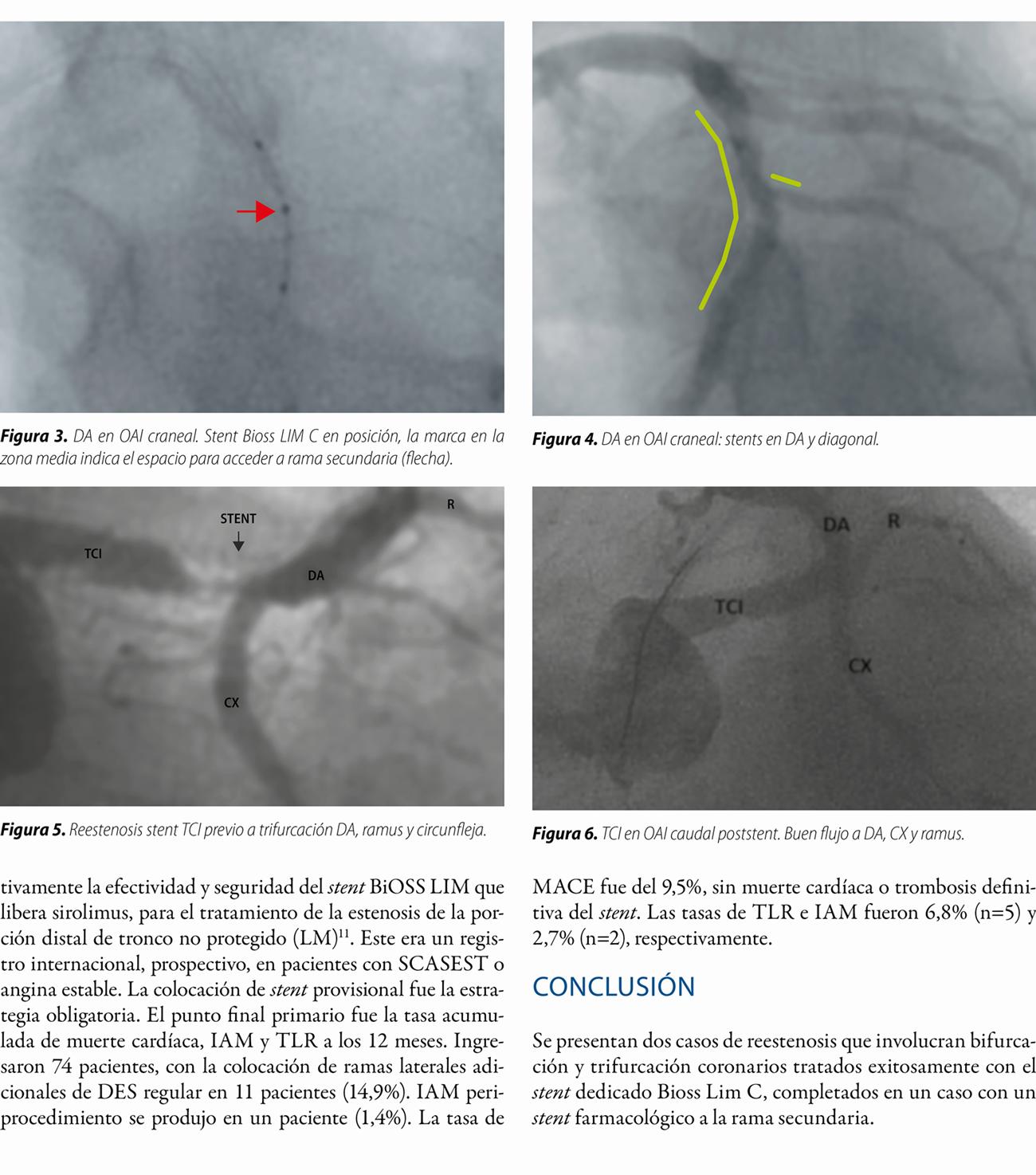 Stent dedicado de bifurcación BiOSS LIM C® en reestenosis de bifurcación y trifurcación coronarias