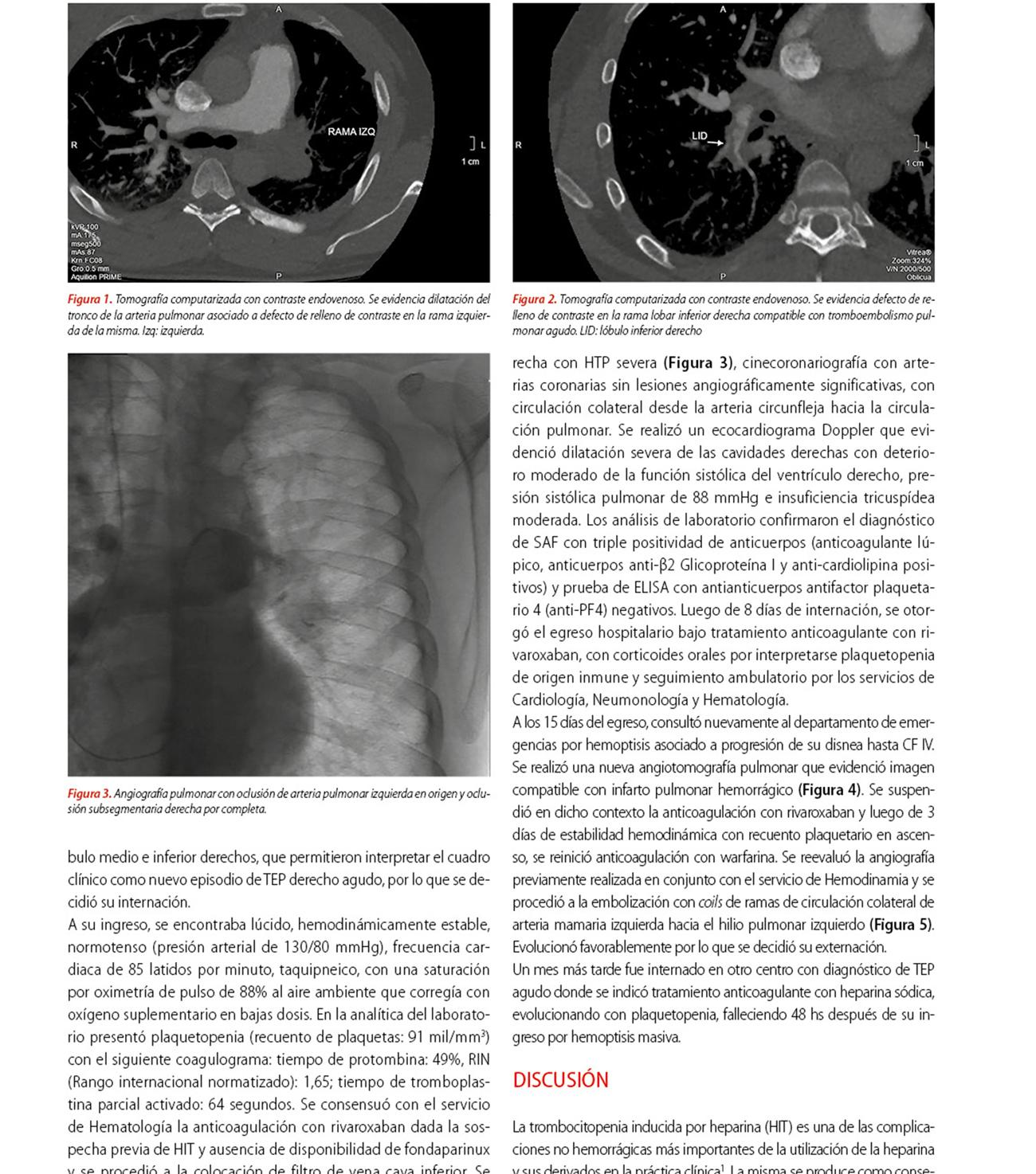 Tromboembolismo pulmonar recurrente en un paciente con síndrome antifosfolipídico y trombocitopenia inducida por heparina