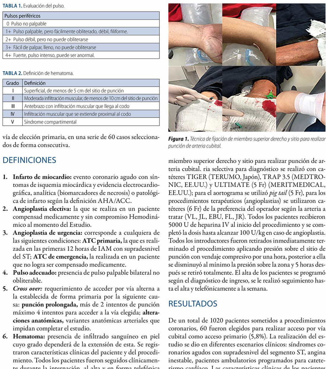 Acceso cubital primario para realizar estudios angiográficos coronarios en 60 pacientes