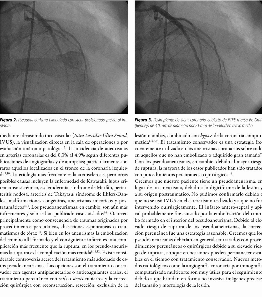 Pseudoaneurisma postraumático de arteria descendente anterior