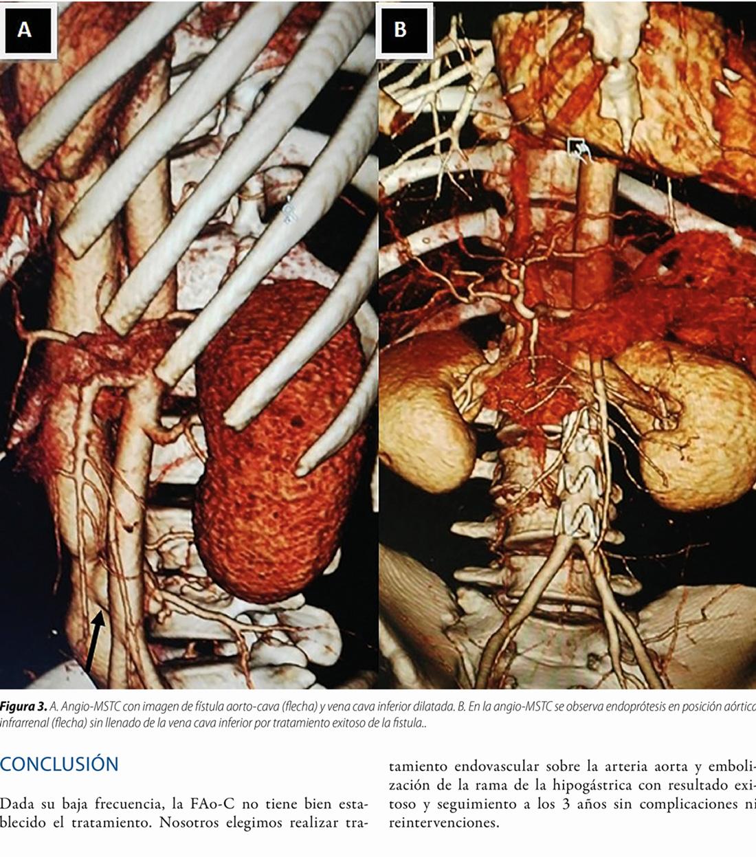 Tratamiento endovascular de fístula aorto-cava