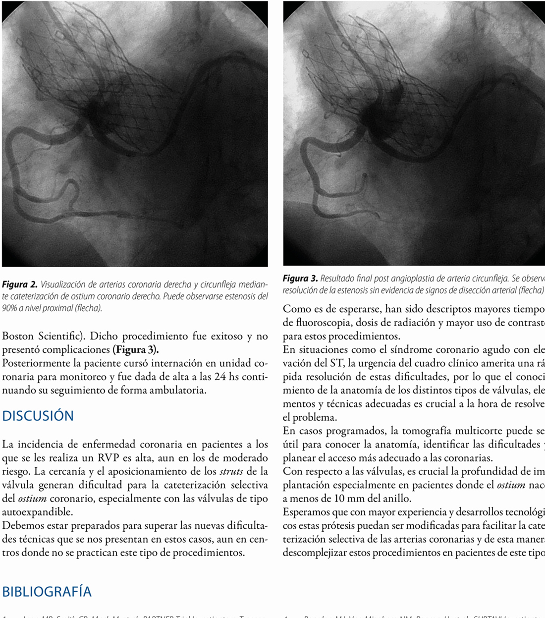 Angioplastia coronaria en arteria circunfleja con nacimiento anómalo en paciente con implante previo de válvula aórtica percutánea