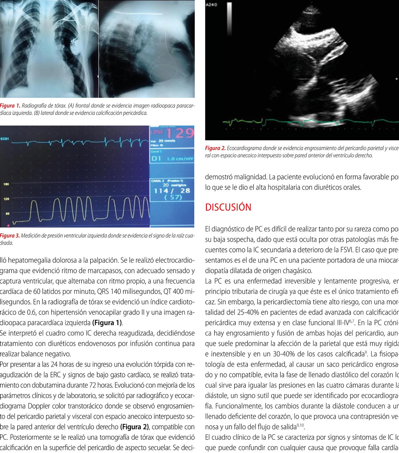 Pericarditis constrictiva asociada a miocardiopatía chagásica