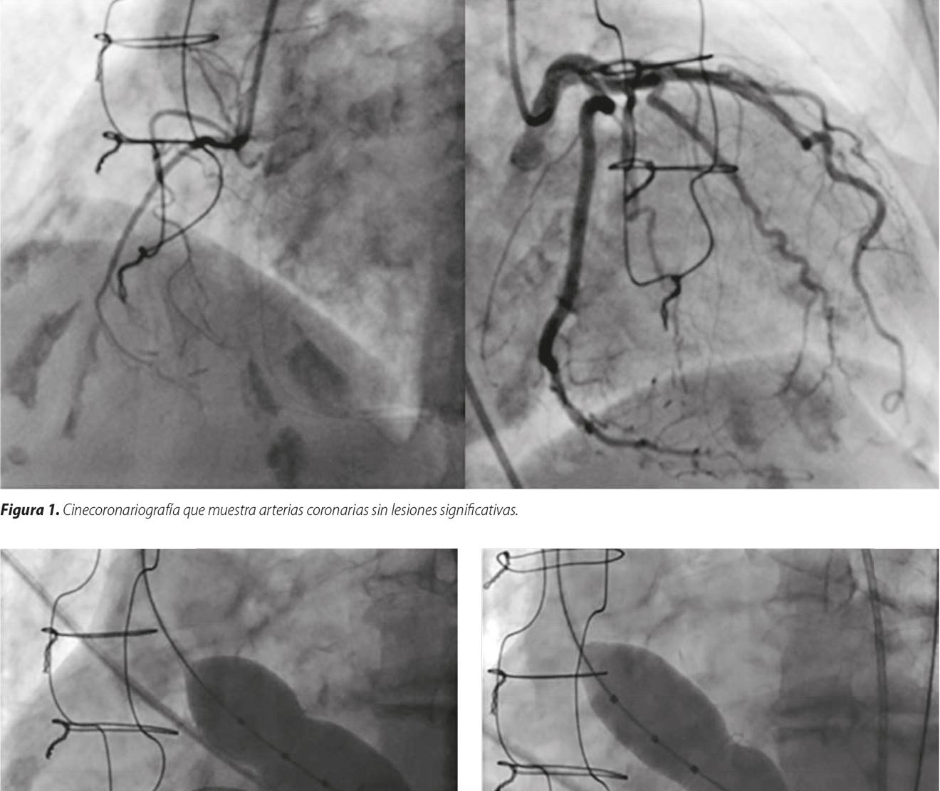 Implante percutáneo de válvula aórtica sobre válvula protésica estenótica valve in valve con técnica de cracking: primer reporte de un caso en Argentina