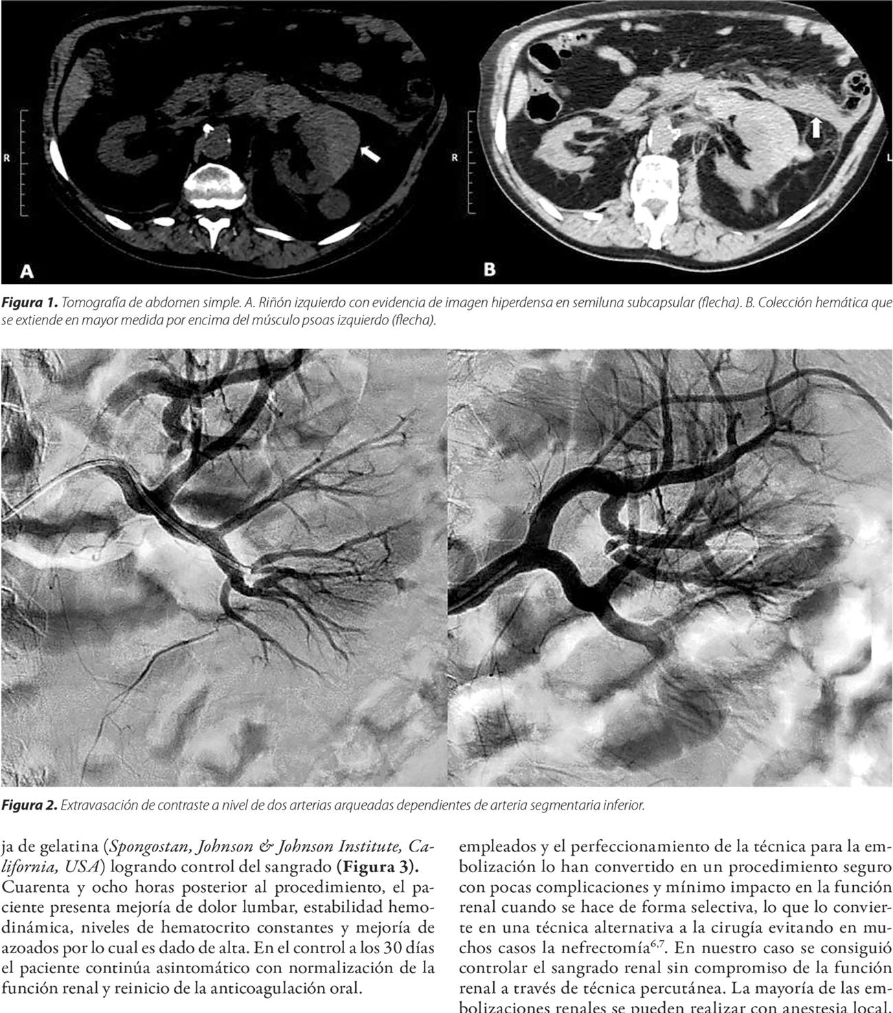 Alternativa mínimamente invasiva a la cirugía en sangrado renal espontáneo