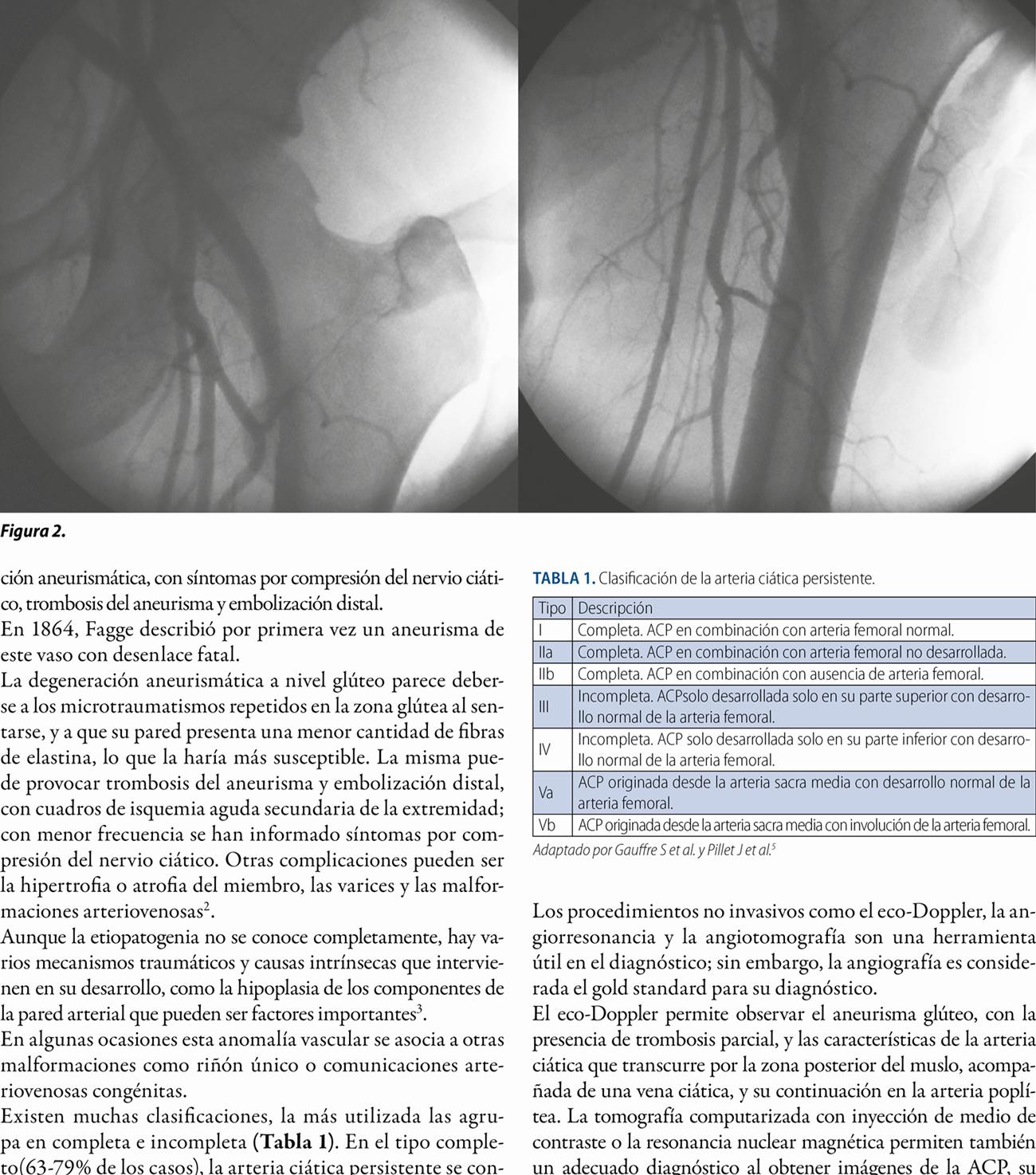 Arteria ciática persistente
