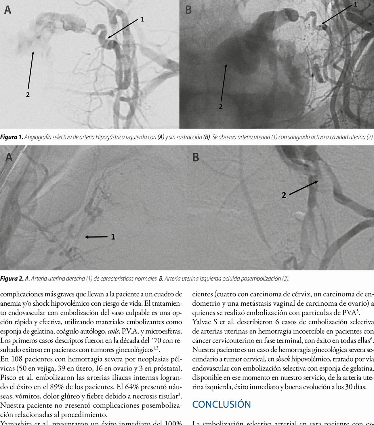 Embolización de arteria uterina en una paciente  con sangrado vaginal y shock hipovolémico