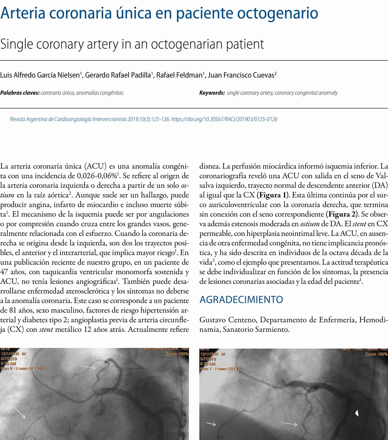Arteria coronaria única en paciente octogenario