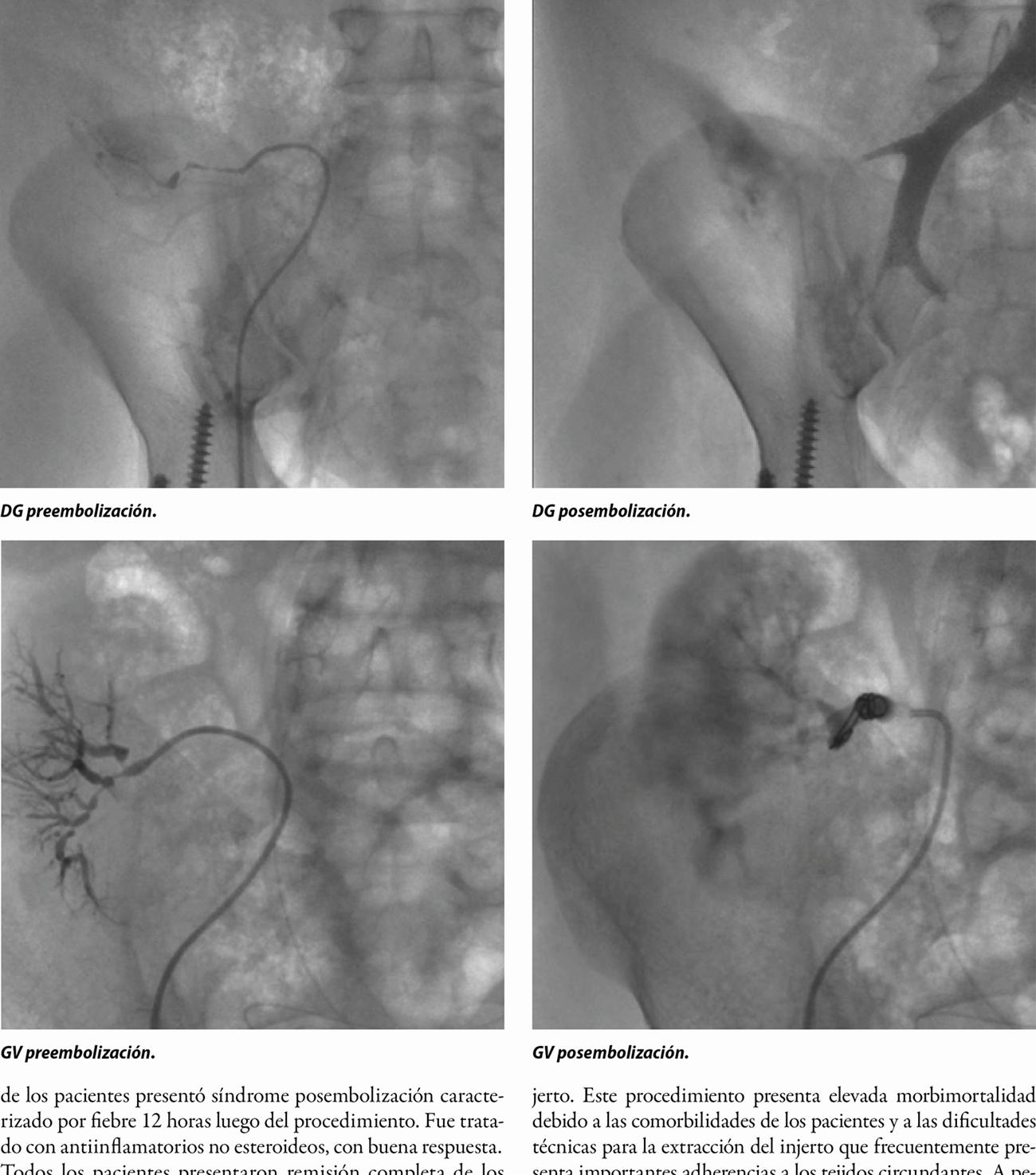 Embolización de trasplante renal no funcionante: experiencia inicial