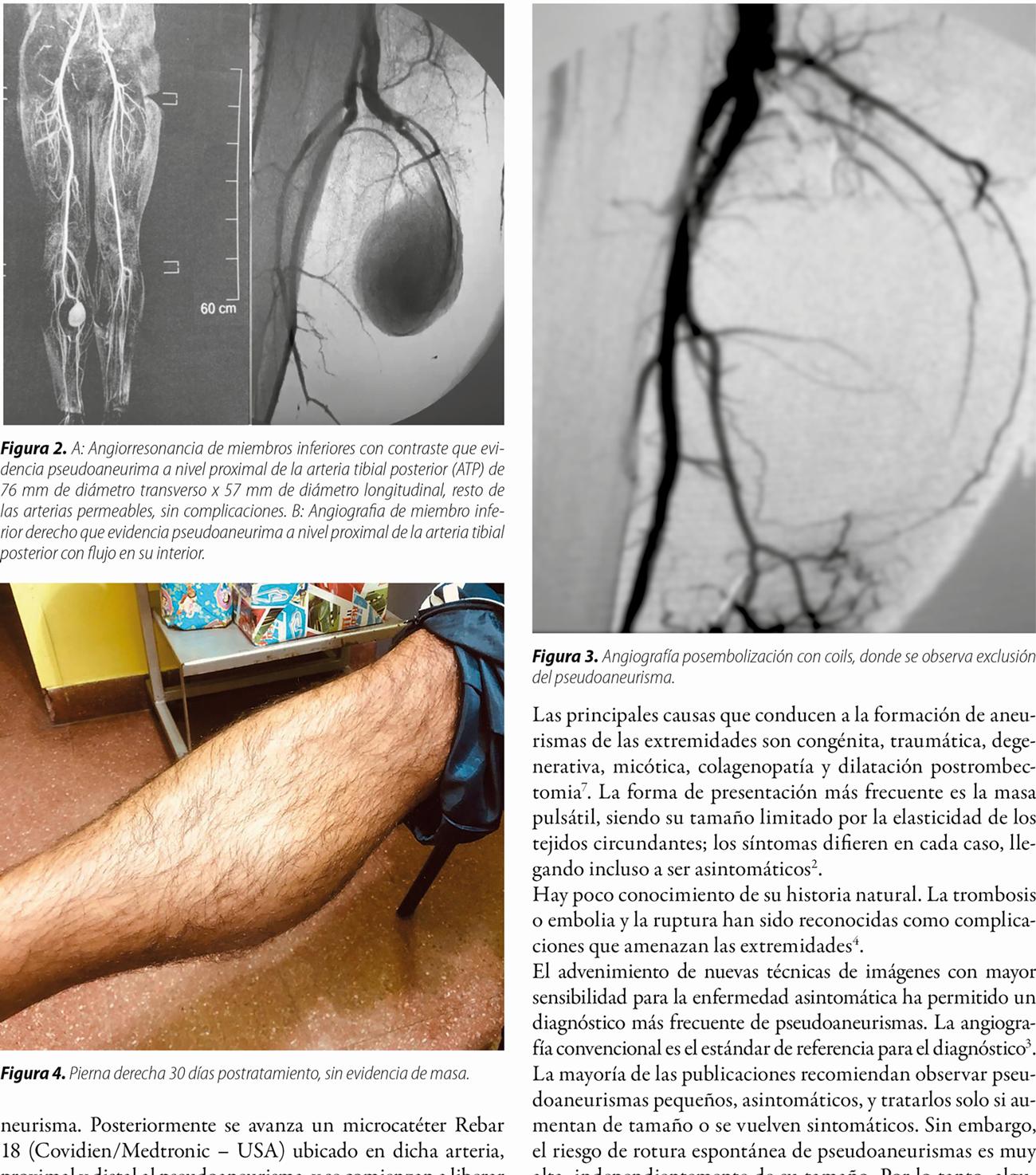 Tratamiento endovascular de pseudoaneurisma de la arteria tibial posterior