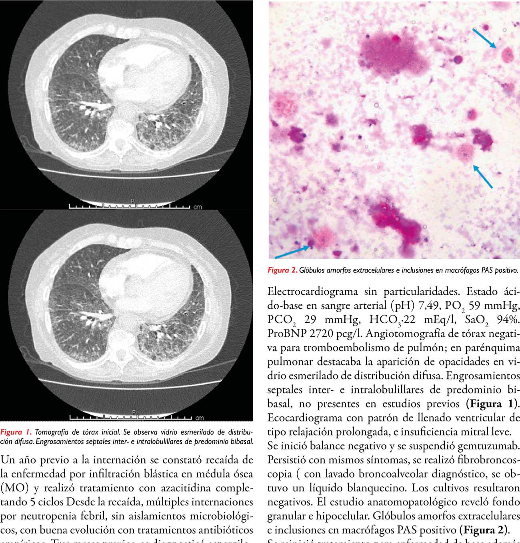Proteinosis alveolar secundaria: reporte de un caso