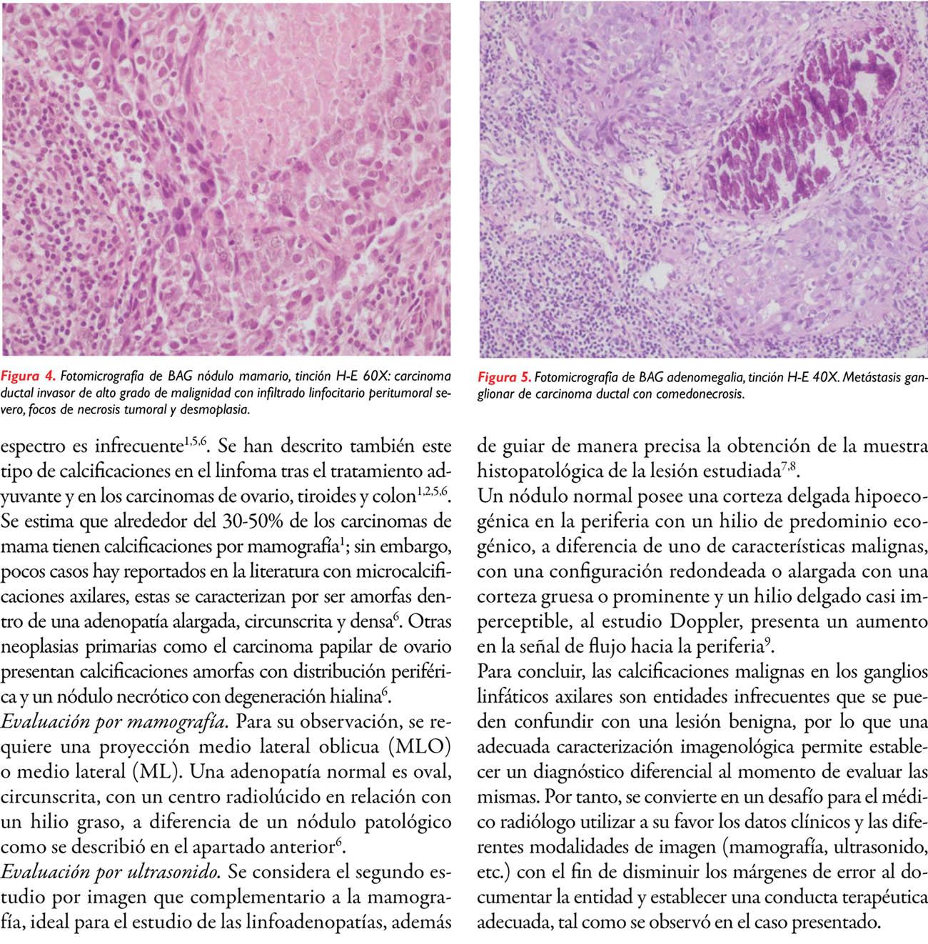 Metástasis calcificada de nódulo axilar en un cáncer de mama: reporte de un caso