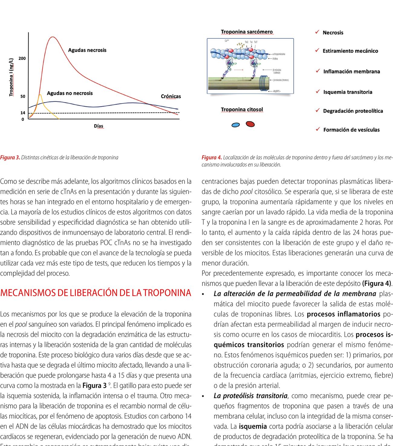 Utilidad de la troponina de alta sensibilidad para la valoración del dolor torácico