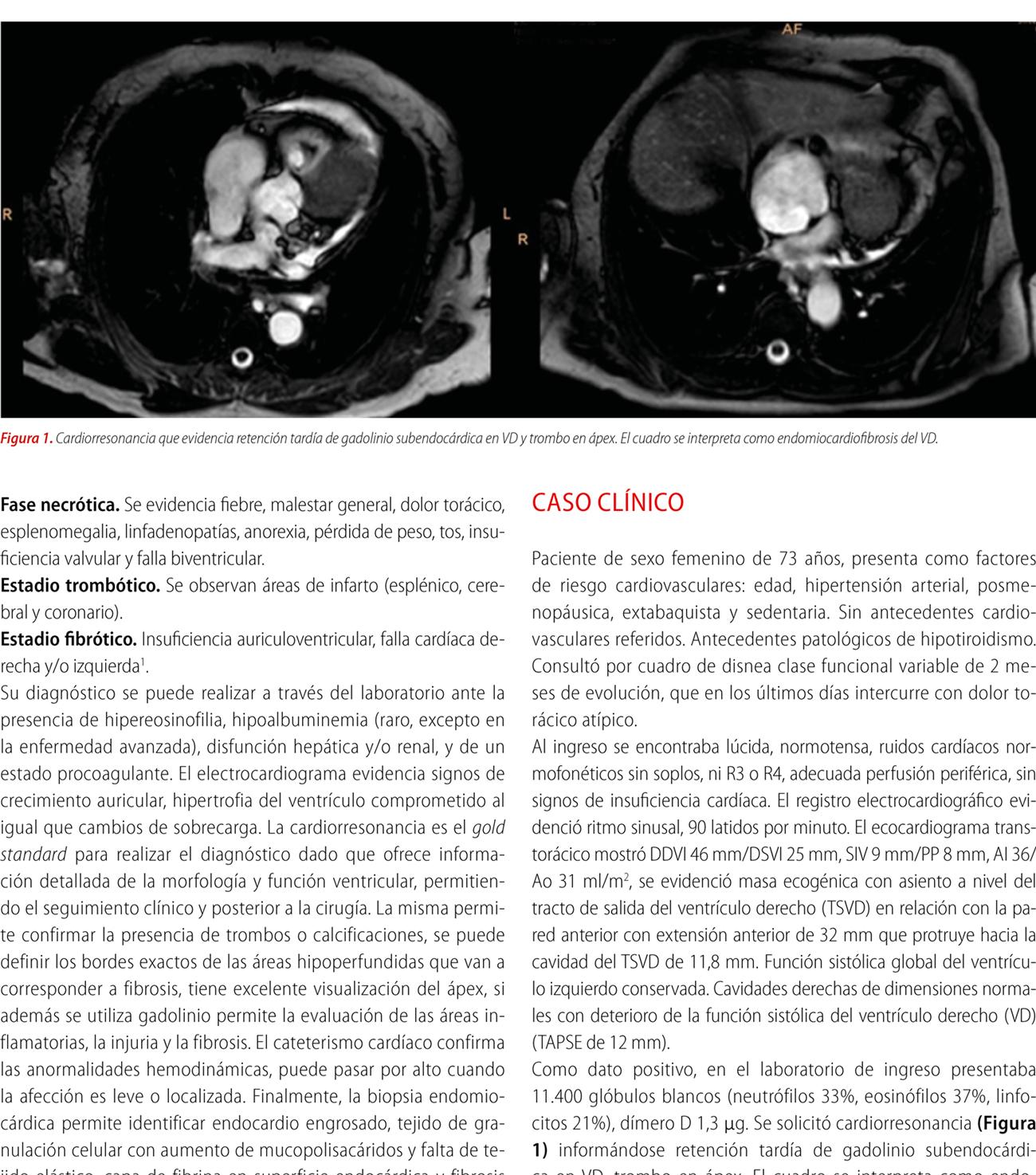 Endomiocardiofibrosis