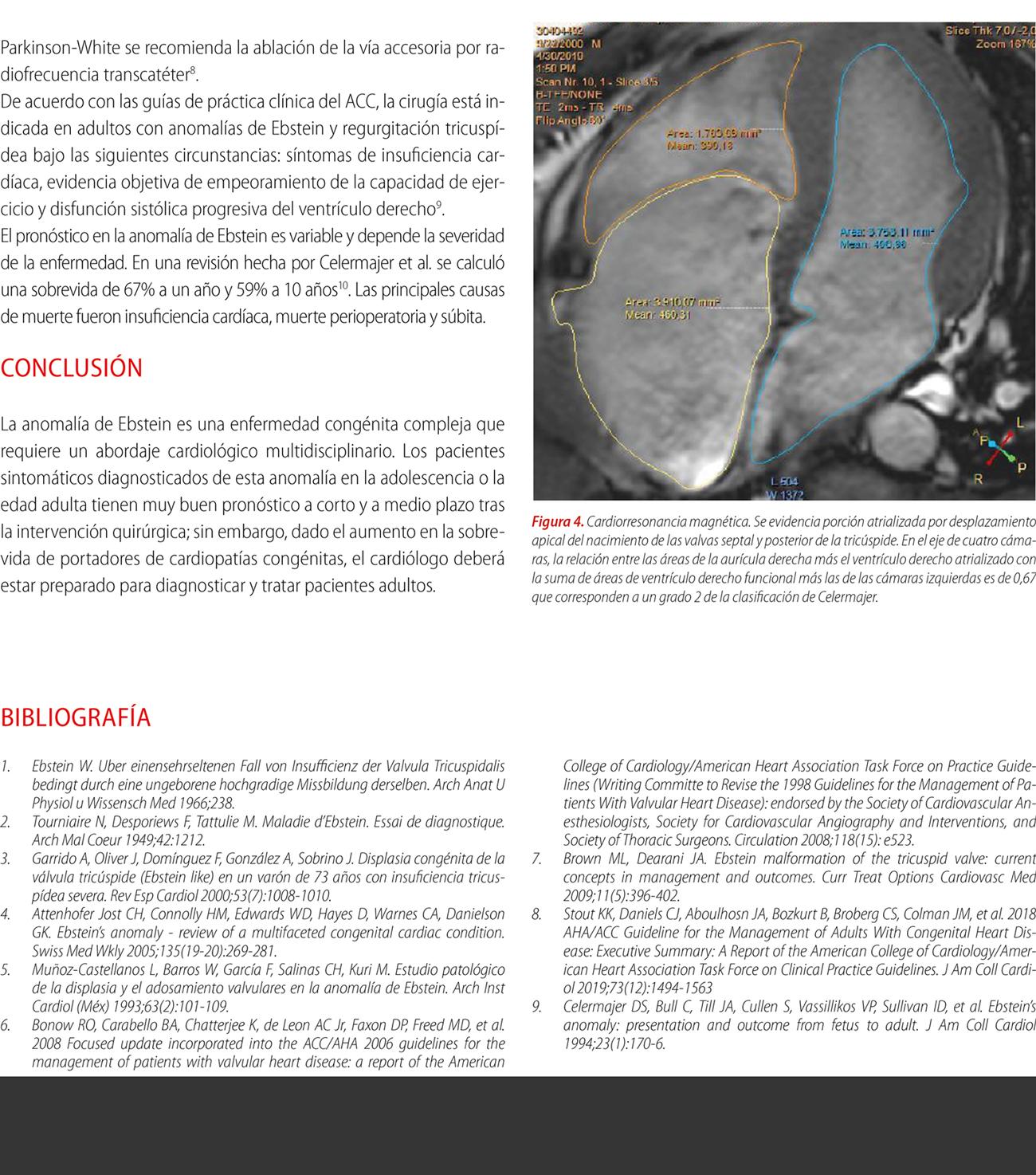 Fibrilación auricular preexcitada como forma de presentación de la anomalía de Ebstein
