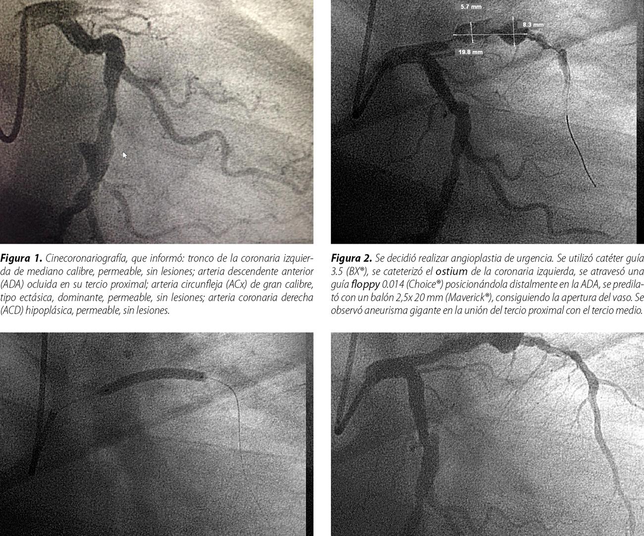 Aneurisma coronario, hallazgo en el síndrome coronario agudo con supradesnivel del segmento ST